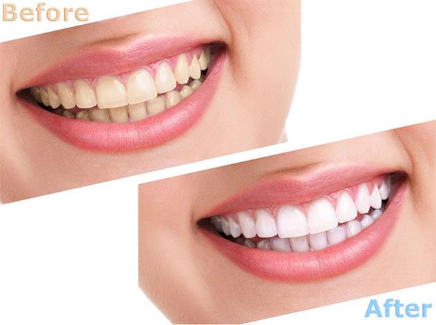 Natürliche zahnfarbe
